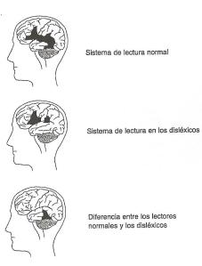 cerebro lect normal y lect dislexicos
